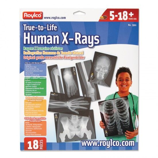 True-to-Life Human X-Rays - 18 bone x-rays printed on transparent plastic sheets from <em>Roylco</em>