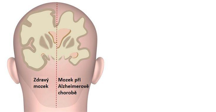 Chtěli byste si posílit mozek a předejít vzniku demence a Alzheimerovy choroby ve starším věku? Potom proveďte těchto 9 věcí ještě dnes.