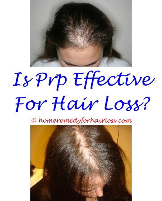 kefir hair loss - dove damage therapy walmart hair loss.hair loss after fall cellcept and hair loss excess biotin hair loss 2626818524