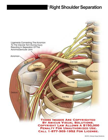 ... with emphasis on the terms related to injury shoulder separation ligament acromion clavicle torn acromioclavicular joint coracoid deltoid rib sternum.