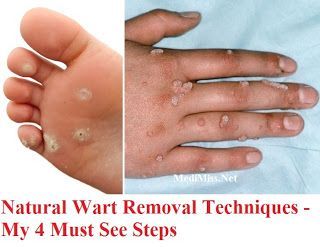 Natural Wart Removal Techniques - My 4 Must See Steps