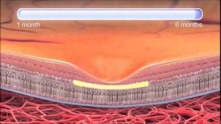 A discussion on Age-Related Macular Degeneration
