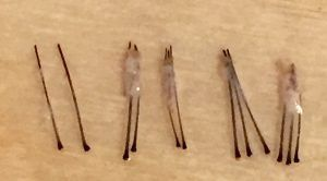 How do hair transplants work?