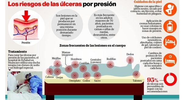 48 best images about Ulceras por presión. \