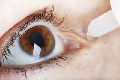 Dry Itchy Eyes Home Remedy