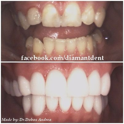 New Smile, new life :) Before After Photo! Have a Bright smile! Dental Bridge! Diamant Dent