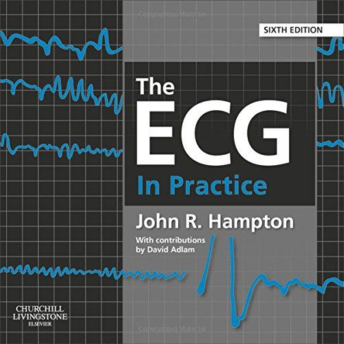 24 best books images on pinterest med school medical and online the ecg in practice 6th edition pdf download e book fandeluxe Choice Image
