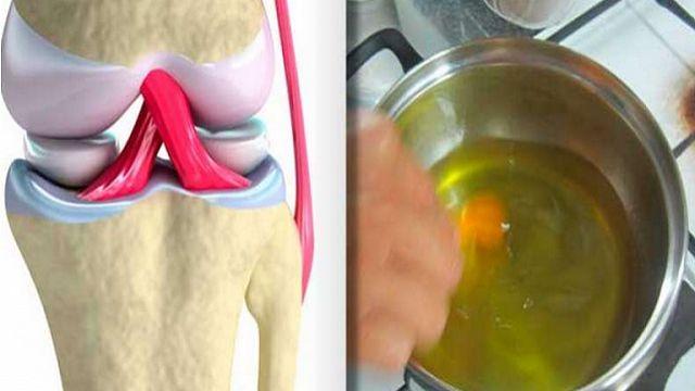Una receta casera que te ayudará a mejorar tus huesos y articulaciones en tiempo récord.