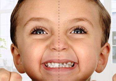How To Protect Your Child From Dental Caries?