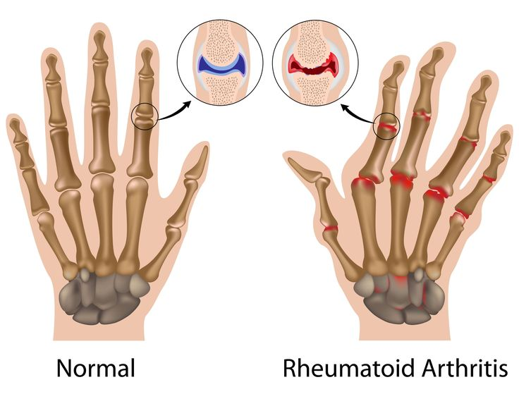 Do you have arthritis? Here is what you should not eat! - http://topnaturalremedies.net/healthy-eating/do-you-have-arthritis-here-is-what-you-should-not-eat/