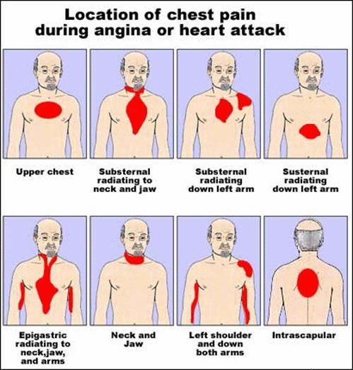 Location of chest pain during angina or #heart attack ...