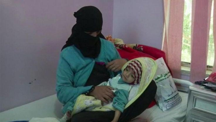 Yemen vive la mayor emergencia alimentaria del mundo, que puede convertirse en hambruna este año si no se toman medidas urgentes. Es la alarma lanzada por Naciones Unidas. Según la organización, 14 millones de personas no se pueden alimentar adecuadamente o frecuentemente no tienen qué comer. Es lo que se llama situación de inseguridad alimentaria. Además, al menos 2 millones de yemeníes necesitan recibir comida de emergencia para sobrevivir y 2,2 millones de niños sufren malnutrición, un…