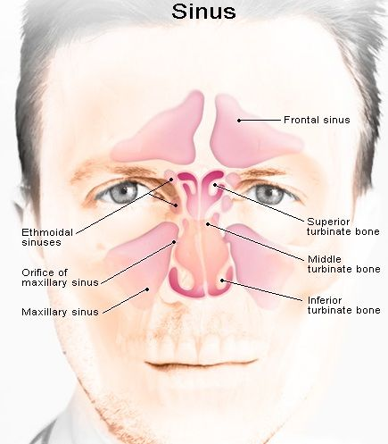 Missclinic: Sinus Treatment using Ginger - Treatment Methods