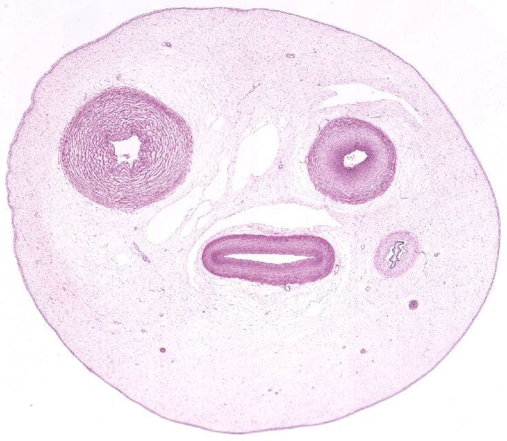 Umbilical Cord Histology 1000+ images about His...