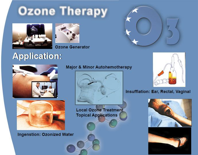 17 Best Images About Ozone Treatments On Pinterest Uric