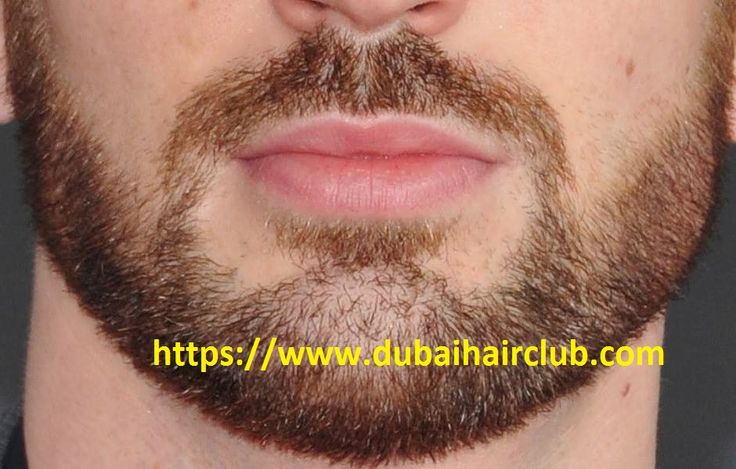 Are you looking for Mustache Hair Transplant in Dubai? Dubai Hair Club is one the best option for you. Book Appointment Now at +971528999342