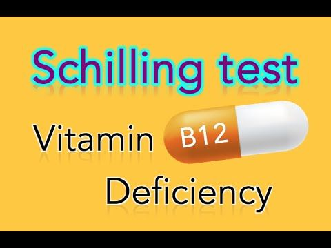 PERNICIOUS ANEMIA-INTRINSIC FACTOR DEFICIENCY which causes B12 def and macrocytic anemia