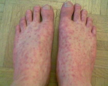 Rocky Mountain Spotted Fever – Causes, Symptoms, Diagnosis, Treatment and Ongoing care - Rocky Mountain spotted fever (RMSF) is an acute, potentially fatal febrile illness caused by Rickettsia rickettsii and transmitted by tick bite.   Read more: http://health.tipsdiscover.com/rocky-mountain-spotted-fever-causes-symptoms-diagnosis-treatment-ongoing-care/#ixzz2lkJh96Rp