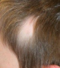 Main Alopecia Areata Cause - Provillus hair loss treatment for thinning hair or hair loss. Provillus is proven to cure alopecia areata also male and female pattern baldness. http://www.provillushairlosscures.com