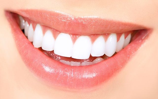 white teeth Simple home remedies to get the white teeth