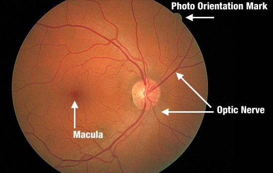 Digital Retinal Photography at Dr. Friedman Optometrists & Associates, Culver City, CA