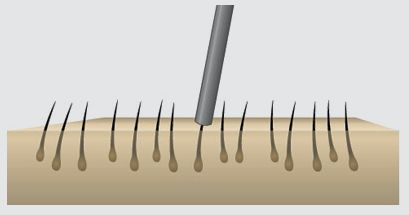 FUE hair transplant is a very effective hair restoration technique used nowadays to get rid of the baldness. But do you know how exactly #FUEhairtransplant works. Check out here.