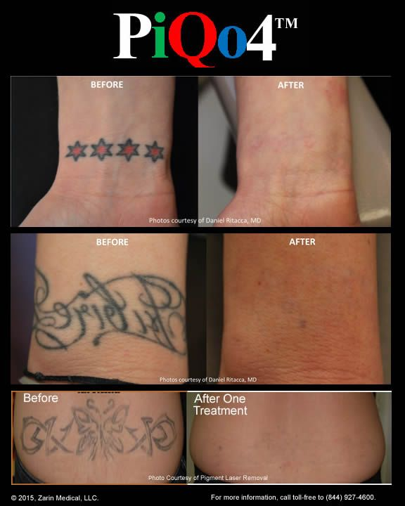 Check Out These Laser Tattoo Removals With Just One Treatment With The Piqo Laser The
