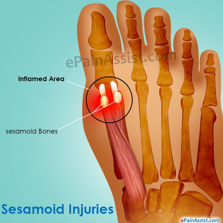 Sesamoid Injuries