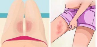 Top 3 Ways to Combat Thigh Chafing