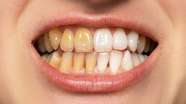 The BEST Way to Whiten Teeth in
