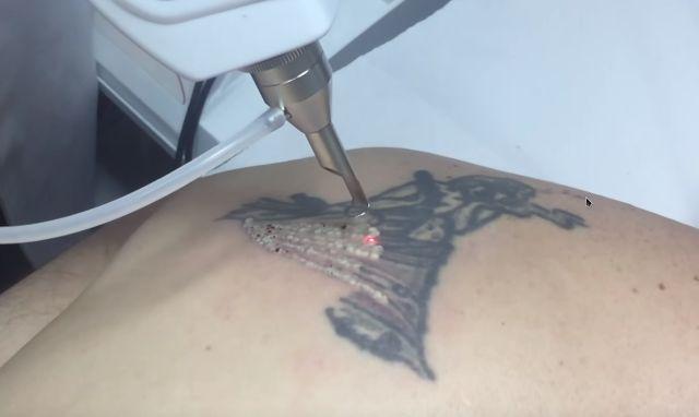 Eliminación de tatuajes y manchas de la piel a través del Láser Q-Switched Nd:YAG