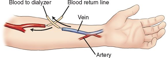 "An internal arteriovenous fistula, or AV fistula, is formed when anastomosis of a large artery in the arm to a large vein is performed. The flow of arterial blood into the venous system causes veins to become engorged (""matured"" or ""developed""). Maturity takes about 1 to 2 weeks and is required before the fistula can be used; the engorged vein is punctured with a large-bore needle for the dialysis procedure."