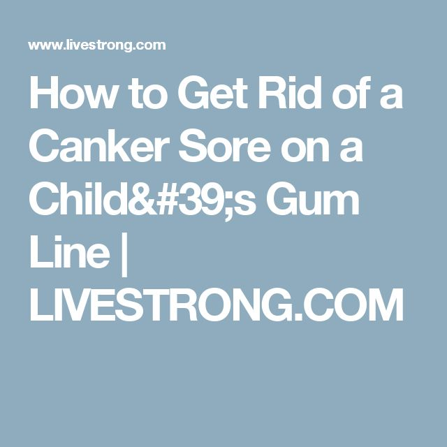 How to Get Rid of a Canker Sore on a Child's Gum Line   LIVESTRONG.COM