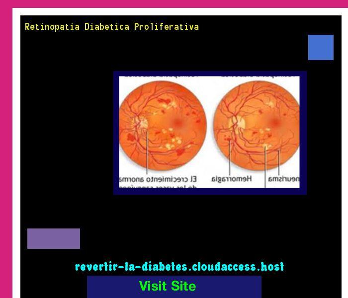 Retinopatia Diabetica Proliferativa 191614 - Aprenda como vencer la diabetes y recuperar su salud.