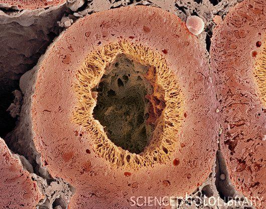 Kidney tubule.