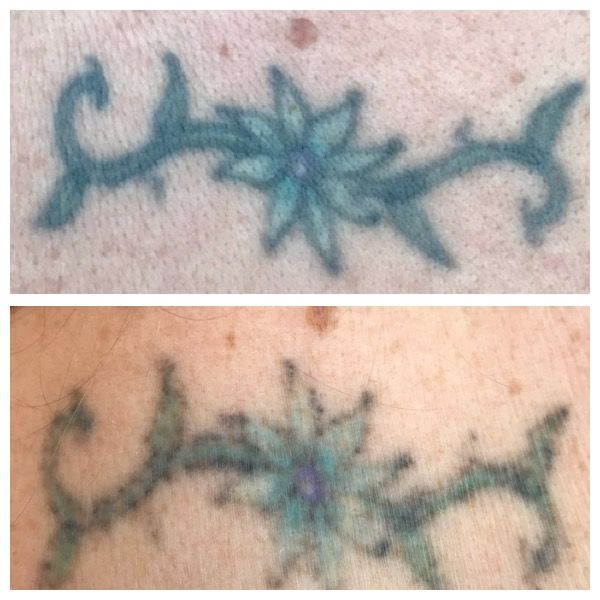 Before And After Of A Clients First Session Completely Healed You Can See Fading In The Colors Alre Tattoo Removal Laser Tattoo Laser Tattoo Removal
