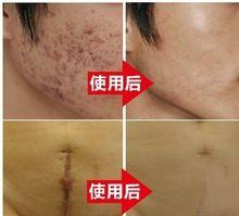 Original autêntico Nuobisong creme da remoção da cicatriz Acne cuidados da pele Acne creme de clareamento estrias hidratante alishoppbrasil