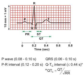 """Representation of single, normal heart beat. Each waveform & deflection is labeled with a letter. They actually represent heart contractions. The first small vertical bump is known as the """"P-wave,"""" when the SA node generates an electrical impulse causing the Atrias (the top) of the heart to contract. Impulse travels down through the heart to the Ventricles. Normally, should be between 0.12-0.20 s. The P-wave & the space between it & next positive (upward) deflection are known as the PR…"""