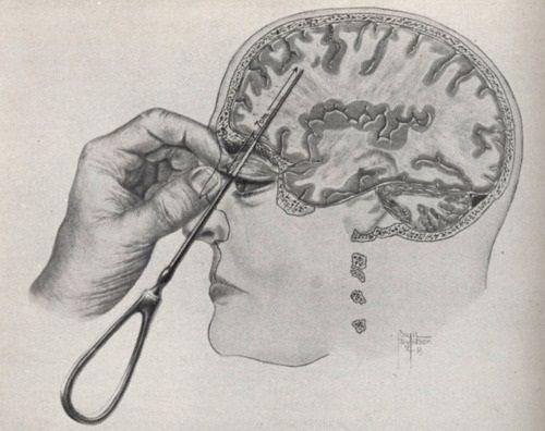 lobotomy diagram: Asylum, Oddities, Erase Bad, Psychology, Bad Memories, Era Bad, Interesting, Lobotomi, The Brain