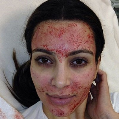 PRP injections don't have look as gruesome as Kim Kardashian's blood facial. PRP is using your own plasma to create your own collagen and actually helps skin look more radiant!