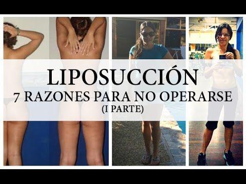 Liposucción: 7 razones para no operarse. Mi experiencia personal (I Parte)  #liposuccion #lipoescultura #cirugiaestetica #perderpeso #antesydespues #lipo