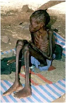 Google Image Result for http://i2.photobucket.com/albums/y38/pfallon/starving_child.jpg