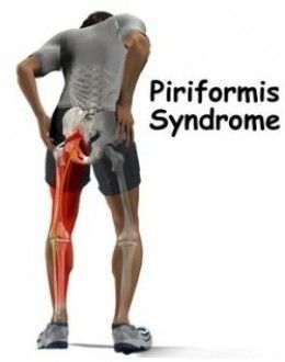 Piriformis Muscle The Root Cause Of Your Low Back Pain