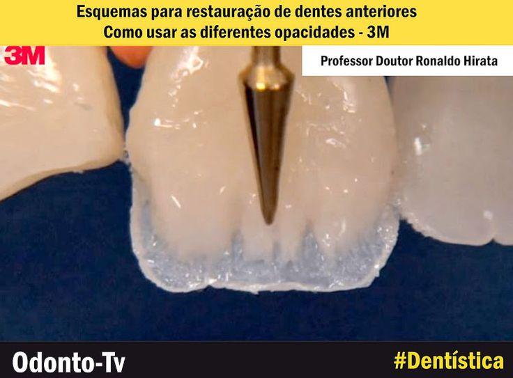 DENTÍSTICA: Esquemas para restauração de dentes anteriores: como usar as diferentes opacidades - 3M | Odonto-Tv