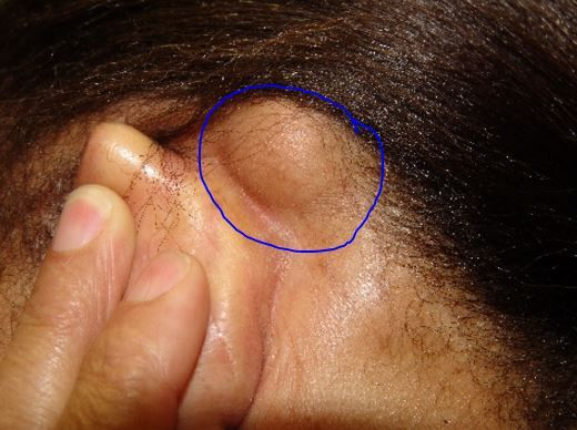 119 best bumps pimples acne zits scabs and sores images on large lipoma bump behind ears movable ccuart Images