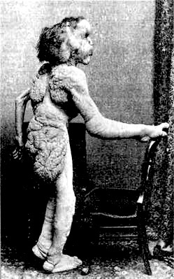 .Joseph Carey Merrick (1862 – 1890), sometimes incorrectly referred to as John Merrick, was an English man with severe deformities who was exhibited as a human curiosity named the Elephant Man. This photograph was taken in 1888. en.wikipedia.org/...