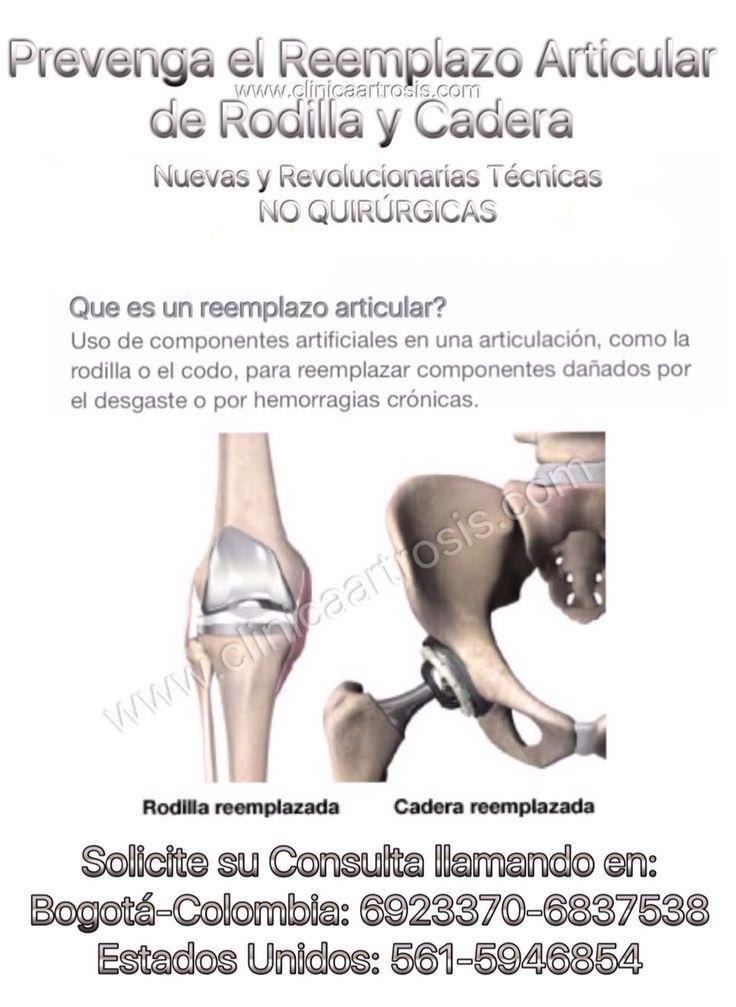 Mejores +25 imágenes de Clínica Artrosis Bogotá en Pinterest ...