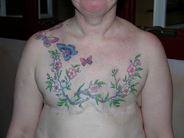 Affirming life after breast cancer tattoo by chris for Breast cancer face tattoos walmart