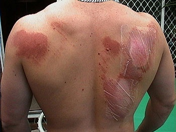 The Homestead Survival: Home Remedies For Abrasions ( Road Rash )