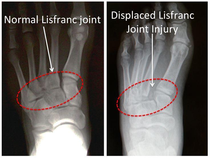 Figure 1B -Lisfranc Injury -x-ray image Normal vs Injured